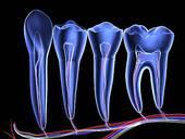 steely-biomimetric-dentistry